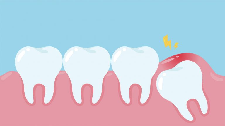 illustration of an impacted wisdom tooth, under gum line